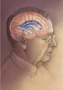 υδροκέφαλος φυσιολογικής πίεσης