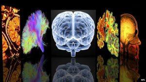 Εικόνες του εγκεφάλου
